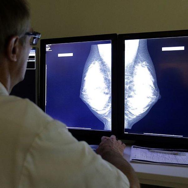 медицина, болезнь, организм человека, Найден способ лечения самого опасного рака груди